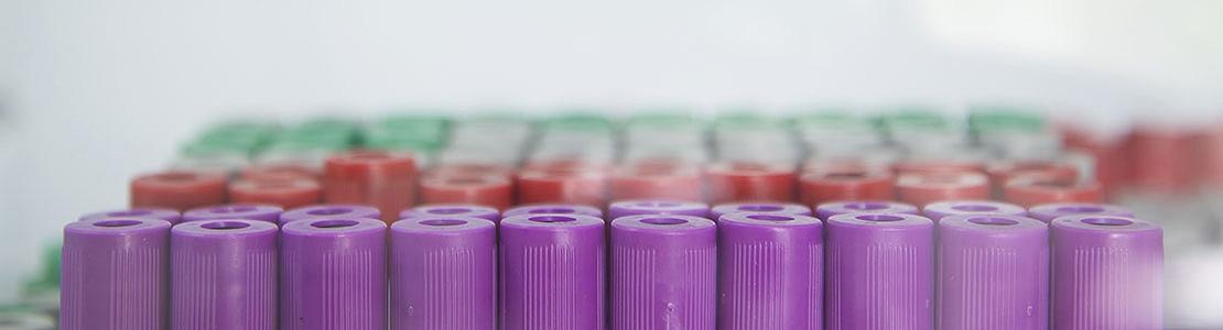 Klinische chemie: interpretatie van laboratoriumresultaten - Editie 5